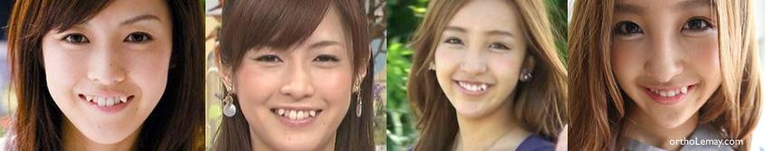Dents ectopiques yaeba chez les japonaises