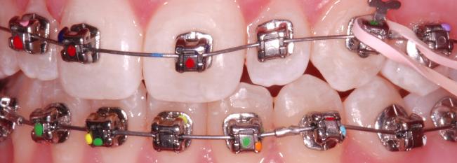 Points de couleur sur les boîtieindiquer la dent et l'inclinaison de la fente du boîtier. rs ou brackets Damon