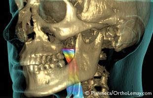 CBCT 3D scan, airway, scan volumique voies respiratoires