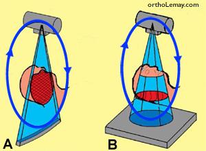Comparaison de la technique radiologique traditionnelle et volumique conique CBCT