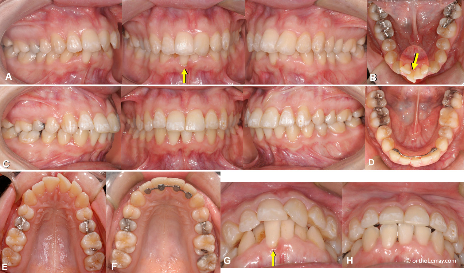 Extraction d'une incisive inférieure en présence de chevauchement dentaire pour faire des corrections orthodontiques. Lower incisor extraction for orthodontic coeerction of lower anterior crowding.
