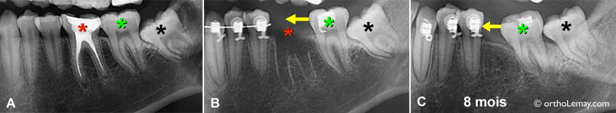 L'extraction d'une dent laisse une cavité qui se remplira d'os progressivement.