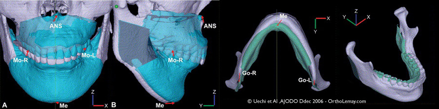 Planification virtuelle de chirurgie orthognathique à l'aide s,Un scan 3d CBCT