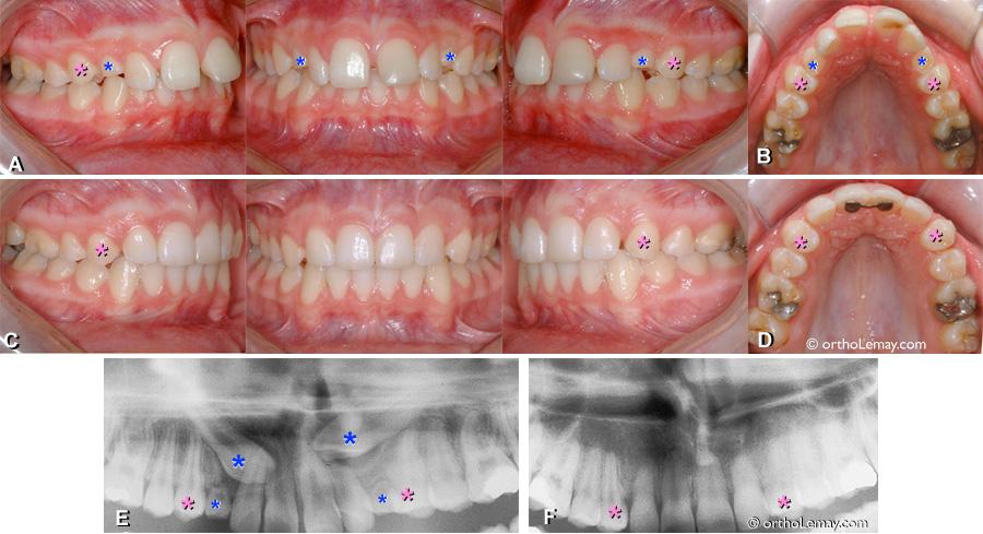 Extraction de canines incluses et fermeture d'espace en orthodontie