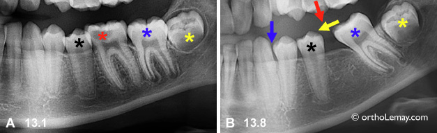 Extraction d'une molaire cariée et migration des autres dents. Tooth migratin after molar extraction. Orthodontiste Lemay Sherbrooke orthodontie orthosherbrooke orthoLemay.com orthodentie orthodentiste