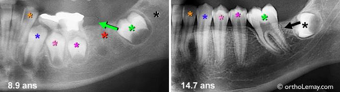 Extraction d'une molaire et migration des autres dents pendant l'éruption dentaire. Formation de la dent de sagesse.