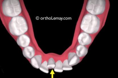 Simulation de traitement d'orthodontie avec aligneurs transparents Invisalign ou ClearCorrect avec l'extraction d'une incisive inférieure.