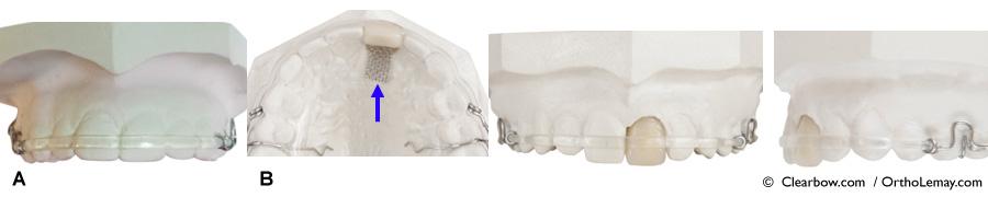 ClearBow Hawley avec dent prothétique pour rétention / contention orthodontique