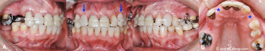 Appareil de rétention orthodontique amovible ClearBow esthétique et dents prothétiques utilisés chez une adulte avec plusieurs dents manquantes.