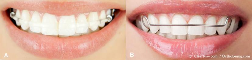 Appareil de rétention orthodontique CLearBow esthétique