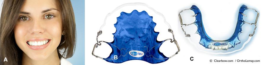 Les appareils de rétention orthodontique ClearBow sont pratiquement invisibles et indestructibles