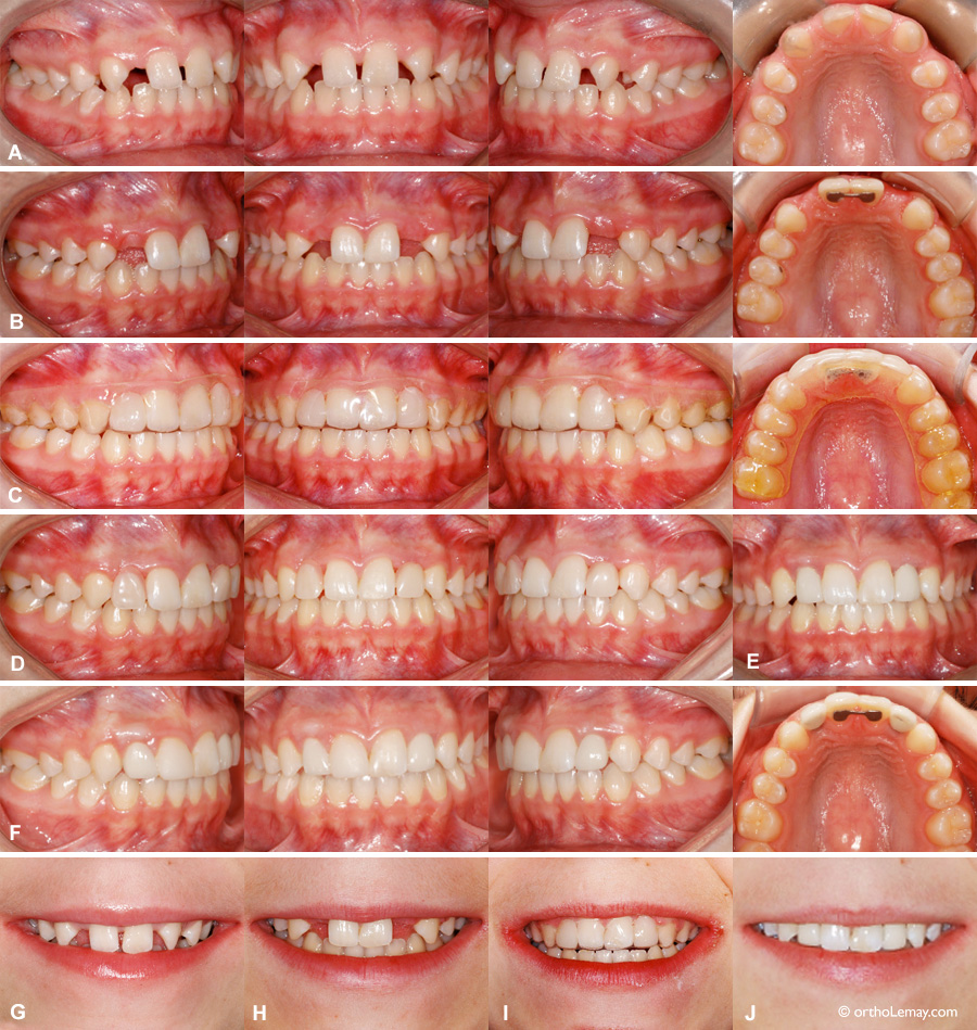 Opening of space to replace congenitally missing lateral incisors.
