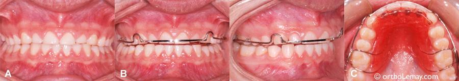 Hawley bite plane ou plan articulé utilisé en rétention orthodontique pour le bruxisme et l'usure dentaire.