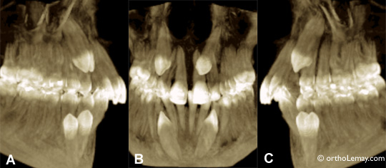Imagerie tri-dimensionnelle par tomodensitométrie volumique à faisceau conique de 4 canines incluses.