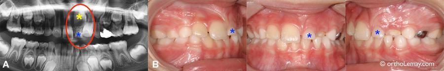 Retard éruption dentaire obstruction 538350 AP8