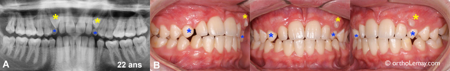 Retard d'éruption dentaire de 4 ans chez un jeune adulte.