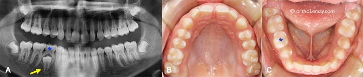 Retard dentaire et éruption normale radiographie