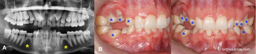 Retard d'éruption extrême chez une femme de 28 ans ayant plusieurs dents temporaires restantes et des dents incluses.