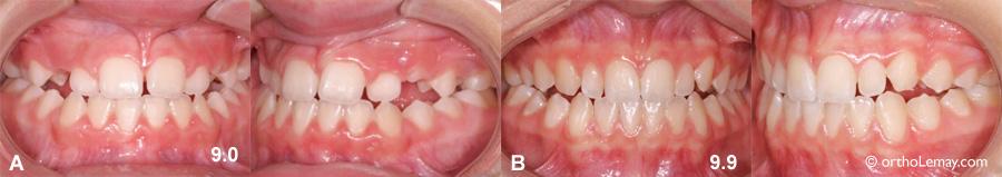 Développement dentaire rapide précoce 538108 EB9.2 537725 NG9.9