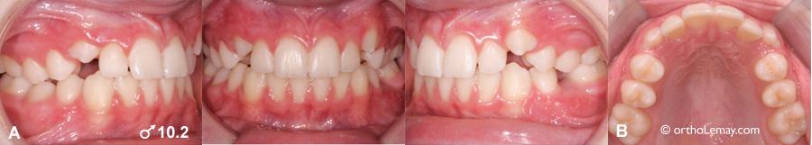 Éruption dentaire précoce rapide orthodontie 537755 TH9