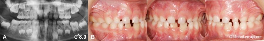 Retard éruption dentaire radiographie orthodontie 538200 BK8