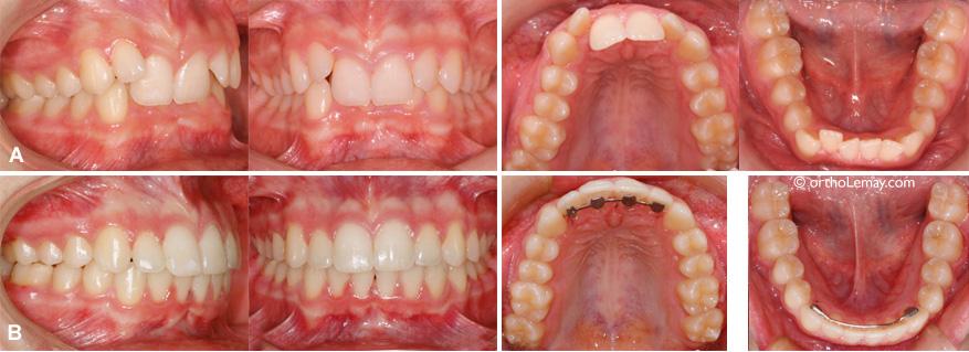 Correction d'une malocclusion classe 2 division 2 avec surplomb excessif en orthodontie