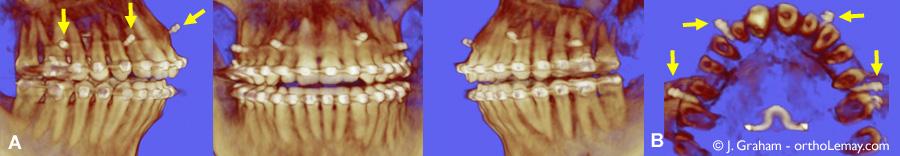 Tomodensitométrie volumique à faisceau conique (TVFC) montrant la position de mini-vis d'ancrage utilisées pour l'ingression orthodontique d'un sourire gingival. Cas traité par John Graham, Phoenix, AZl.