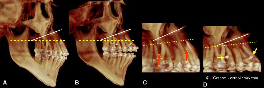 tomodensitométrie volumique à faisceau conique (TVFC) CBCT montrant le résultat de l'ingressionorthodontique à l'aide de mini-vis d'ancrage. Cas traité par John Graham, Phoenix, AZ