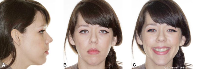 Correction d'un sourire gingival sévère en orthodontie avec des mini-vis d'ancrage temporaires.