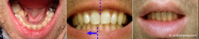 Déviation des lignes médianes et asymétrie des arcades dentaires. Correction en orthodontie