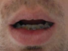 ingression des incisives inférieures à l'aide de  mini-vis d'ancrage en orthodontie