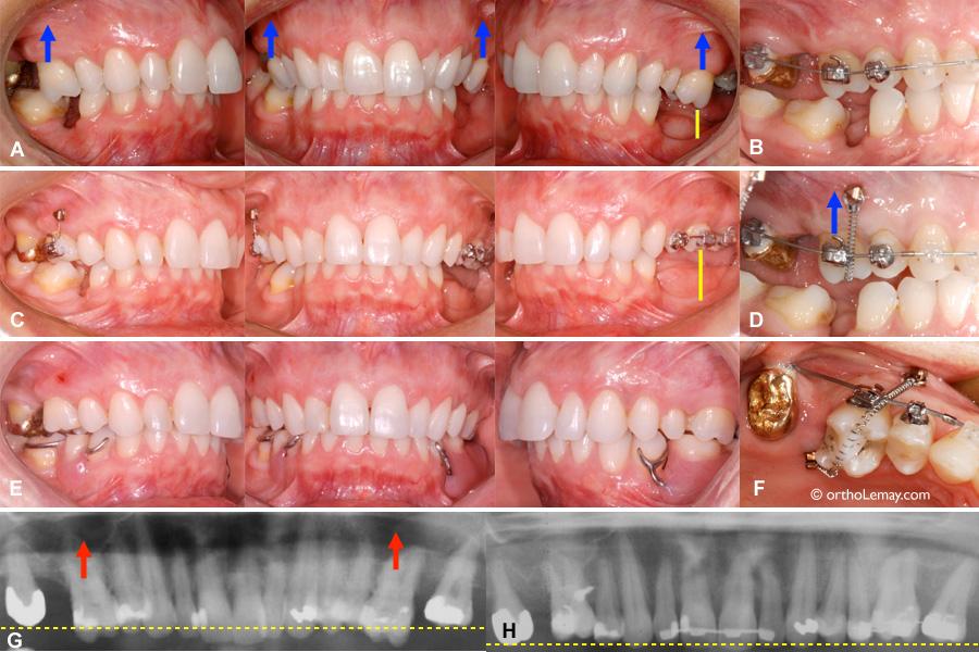 Utilisatin de mini-vis d'ancrage temporaire pour faie de l'ingression de molaires en orthodontie
