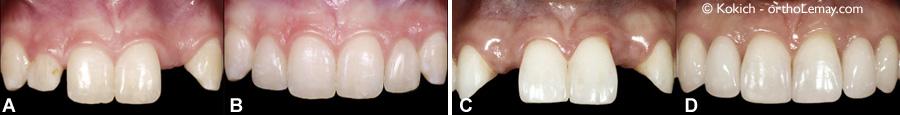 Restaurations dentaires pour remplacer des incisives latérales manquantes en orthodontie et prosthodontie