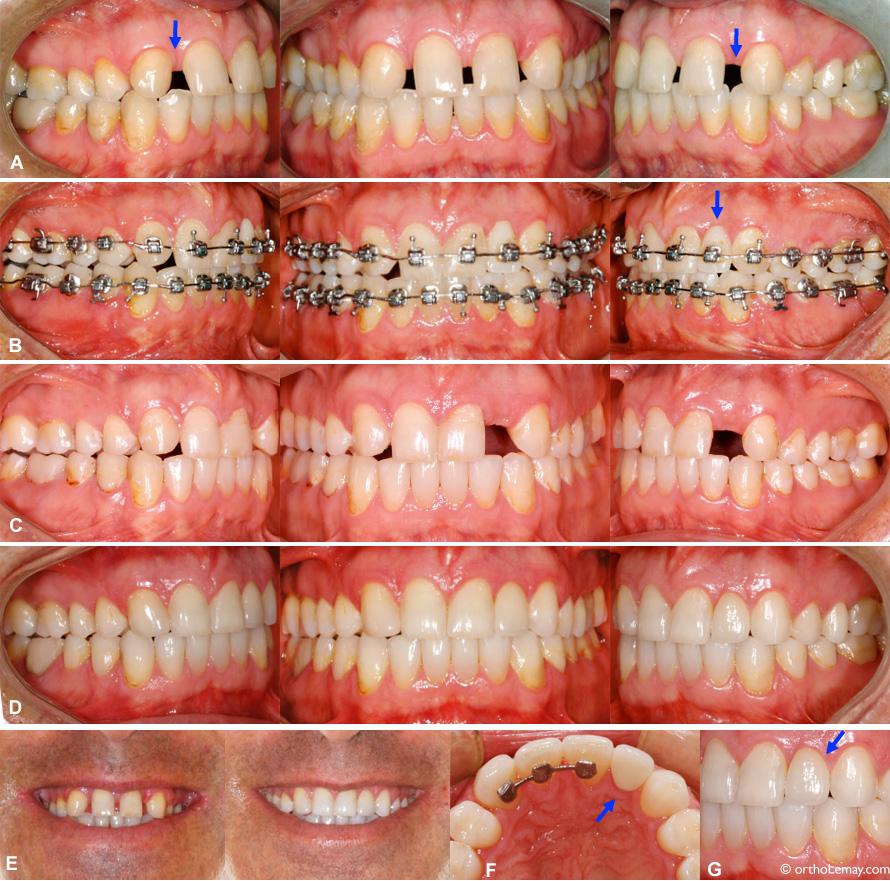 Corrections orthodontiques pour combler des espaces où des incisives latérales sont absentes (anodontie).