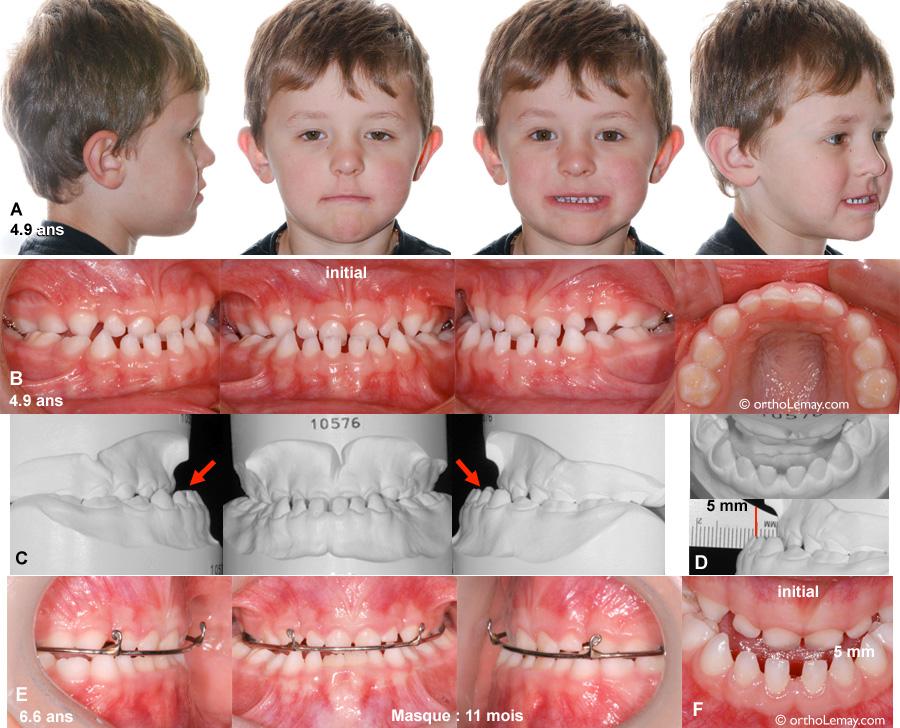 Masque de traction extra-oral Delaire utilisé pour corriger une sévère malocclusion classe 3 chez un jeune enfant