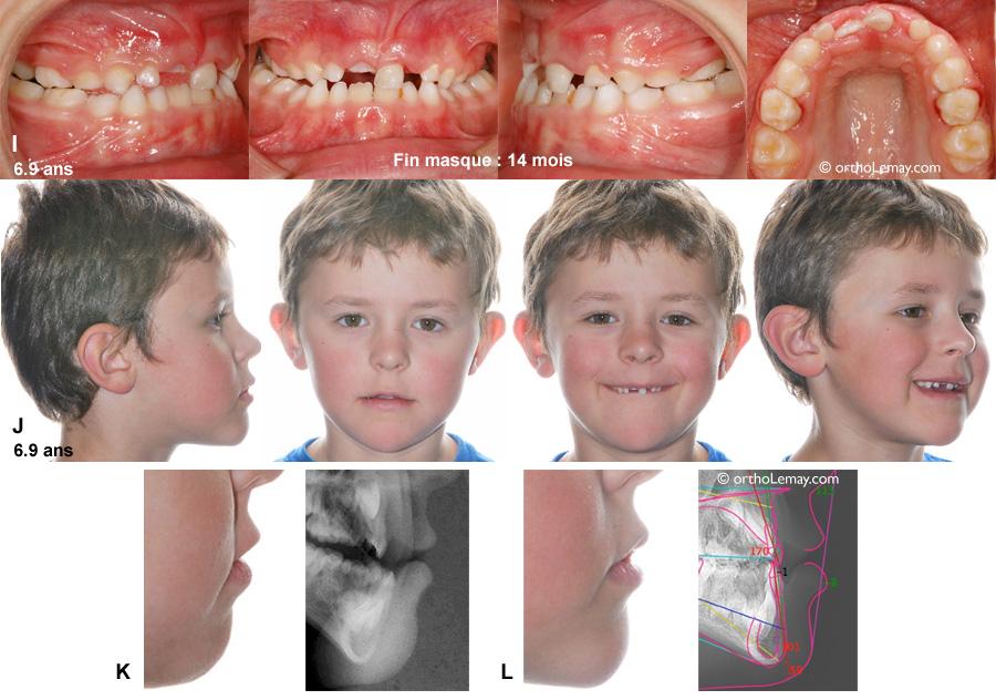 Changement dans le profil avec l'utilisatin d'un masque Delaire en orthodontie chez un jeune garçon
