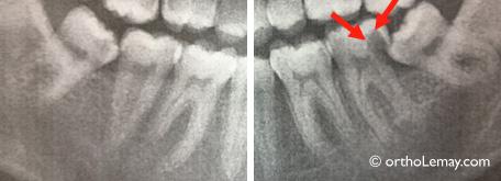 Carie dentaire et extraction de molaire en orthodontie