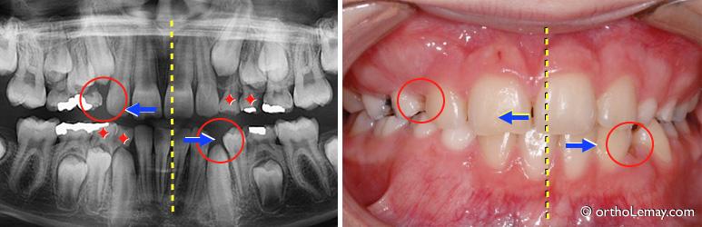 Exemple de dévaition des lignes médianes suite à la perte de dents de lait (dents temporaires)