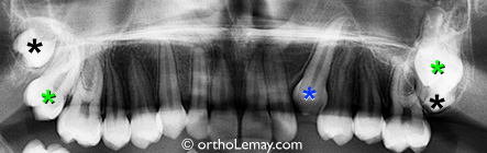 Obstruction d'éruption dentaire causée par une dent de sagesse ectopique.
