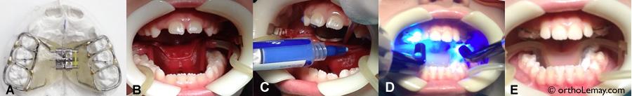 Étapes principales de la pose d'un appareil d'expansion maxillaire rapide. (A) Appareil d'expansion tel qu'il est reçu du laboratoire. (B) Écarteurs et pompes à salive (succion) pour isoler la dentition et la garder au sec. (C) Mordançage (etching) de la surface des dents. Après avoir nettoyé et asséché la surface des dents, un acide spécial contenu dans une seringue est appliqué sur l'émail dentaire uniquement où l'appareil doit être collé. Les dents sont à nouveau rincées et asséchées et sont alors prêtes à recevoir l'appareil. (D) La colle est posée sur l'appareil qui est ensuite placé sur la surface des dents. Des lumières bleues spéciales font durcir la colle rapidement (polymérisation). Cette étape dure moins de 30 secondes. (E) Résultat final avec l'appareil d'expansion bien collé. Toute cette procédure ne prend que quelques minutes.