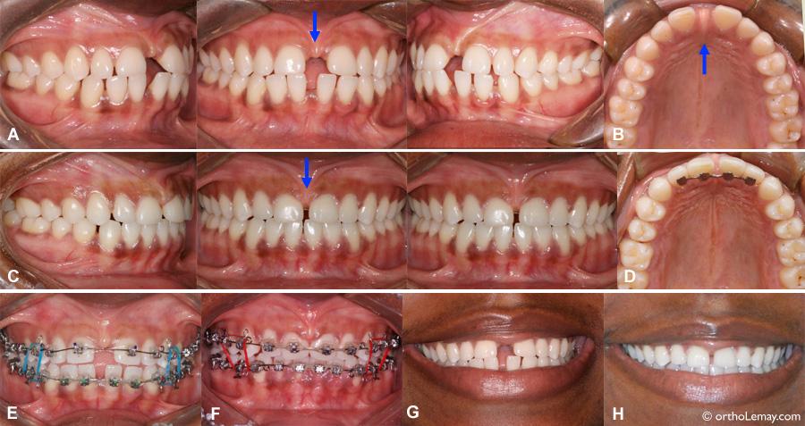 Fermeture partielle d'un espace inter-dentaire (diastème).