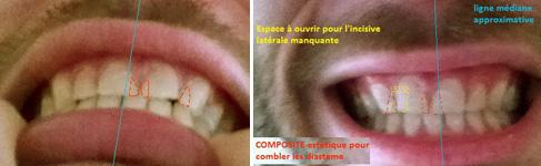 malocclusion dentaire et correction orthodontique avec une latérale manquante