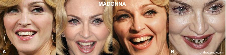 Grills, grillz sur les dents de Madonna. Esthétique dentaire?