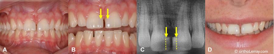 Centrales élargies avec du composite pour fermer un large diastème. Les dents sont maintenant troplarges et inesthétique. L'orthodontie peut corriger la position des dents et améliorer l'esthétique.