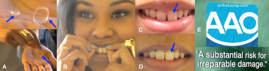 """Les dangers du """"Do it yoursefl orthodontics"""" ou de l'orthodontie. IL est dangereux de tenter de se traiter soi-même en orthodontie"""