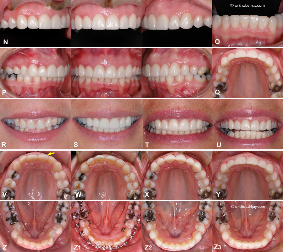 Orthodontic and prosthodontic treatment of an adult with severe dental wear.