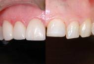 orthodontie inter-isciplinnaire. Corrrection dune importante malocclusion pour permettre au dentiste de restaurer des dents sévèrement usées et améliorer l'esthétique.