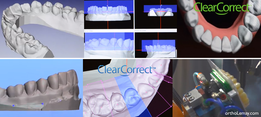 Fabrication des aligneurs invisibles ClearCorrect, alternative à Invisalign.