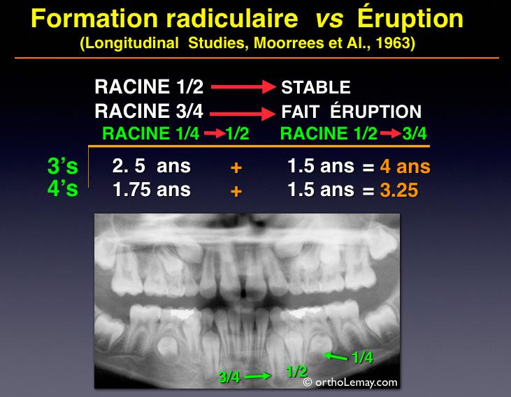 Étude de Moorees et Fanning (1963) expliquant que le degré de formation radiculaires des dents permanentes détermine le moment opportun pour l'extraction sélective d'une dent temporaire.