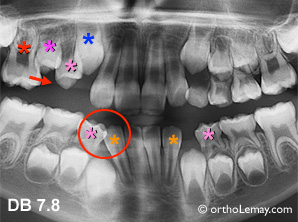 Perte de dents temporaires , migration de dents et perte d'espace causant des problèmes d'éruption dentaire.